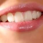 diş çürümesini engellemek